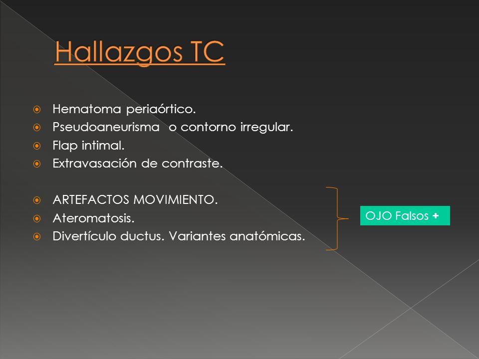 Hallazgos TC Hematoma periaórtico.