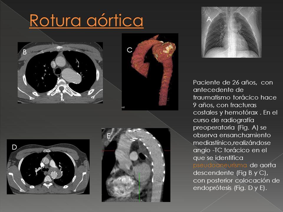Rotura aórticaA. C. B.
