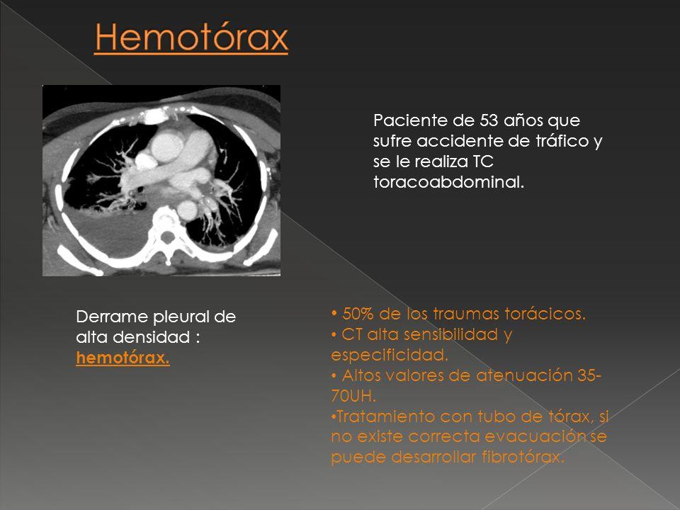 Hemotórax 50% de los traumas torácicos.
