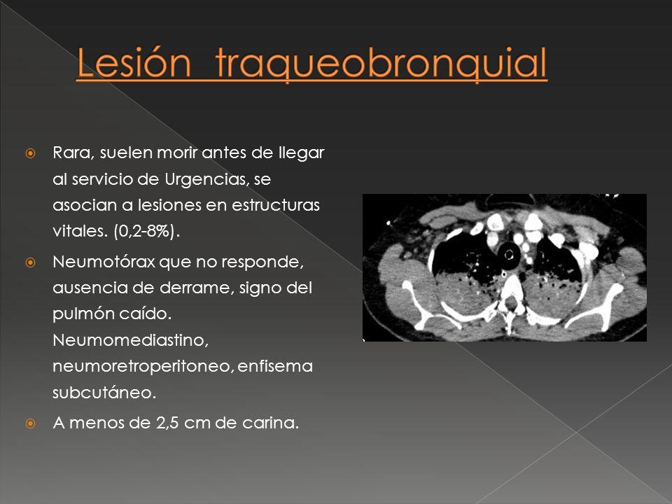 Lesión traqueobronquial