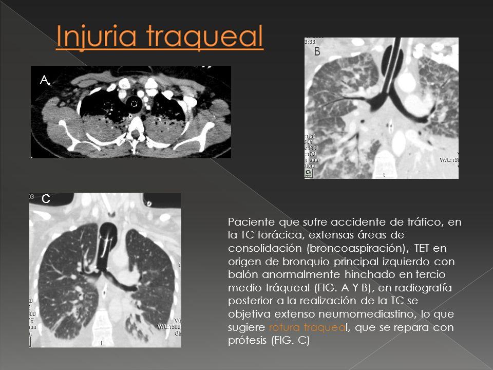 Injuria traqueal B. A. C.