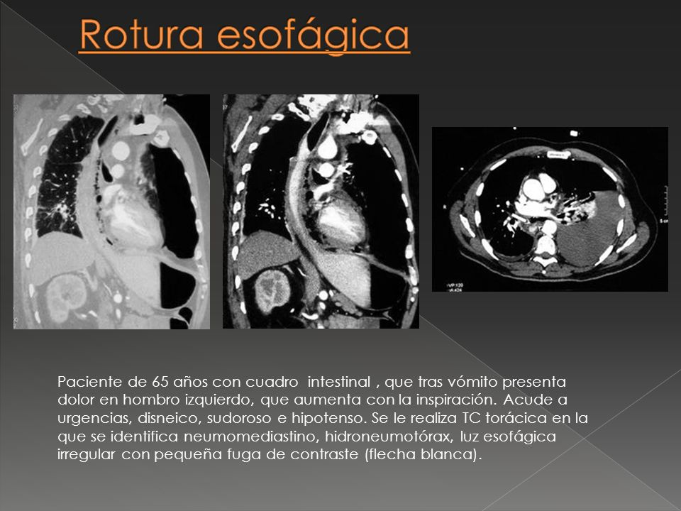 Rotura esofágica