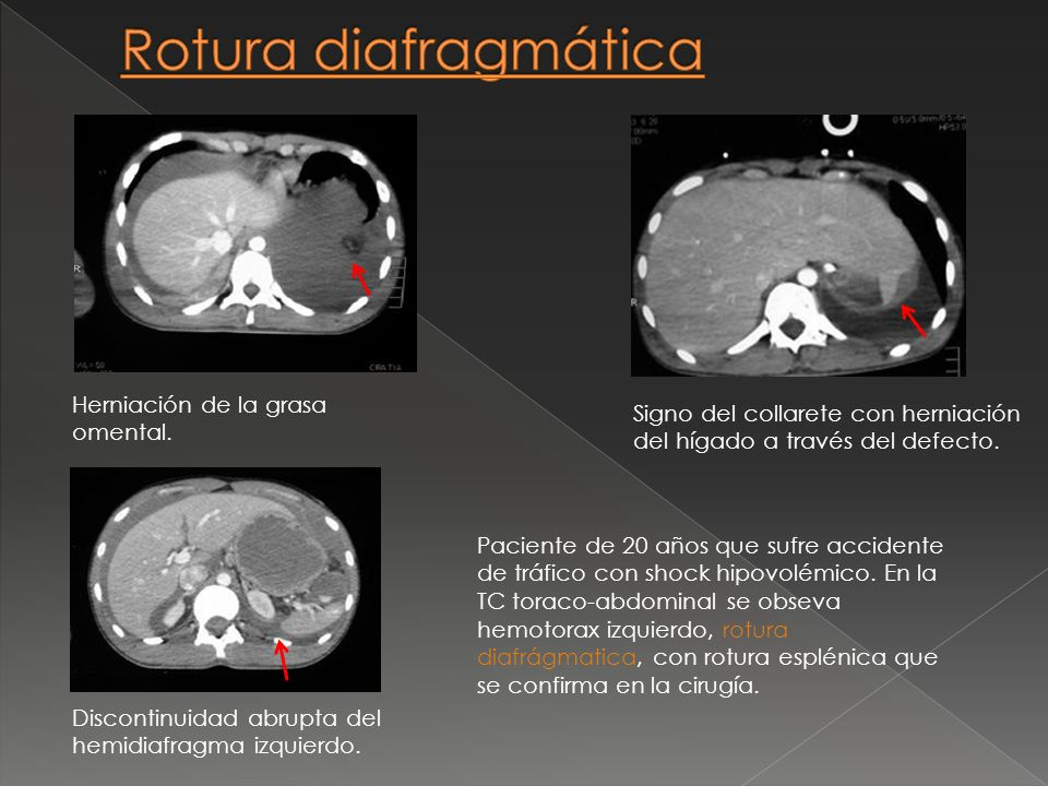 Rotura diafragmática Herniación de la grasa omental.