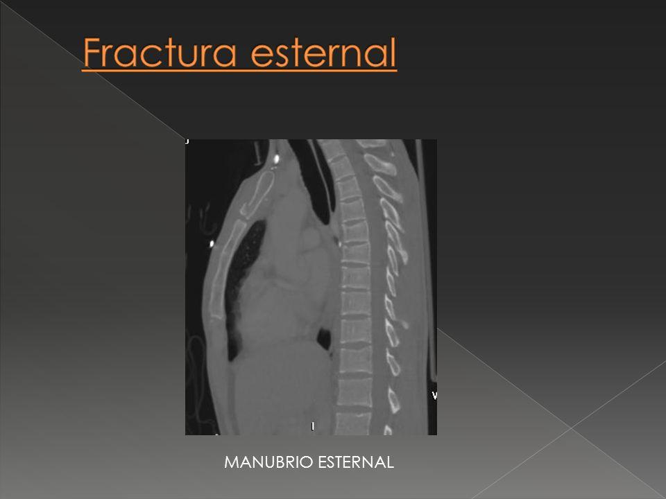 Fractura esternal MANUBRIO ESTERNAL