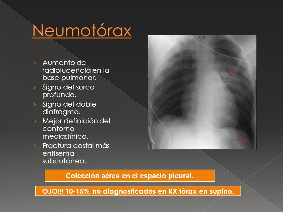 Neumotórax Aumento de radiolucencia en la base pulmonar.