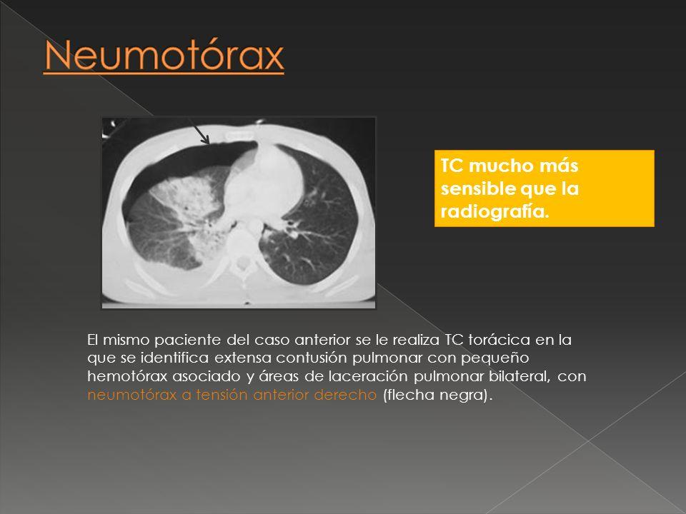 Neumotórax TC mucho más sensible que la radiografía.