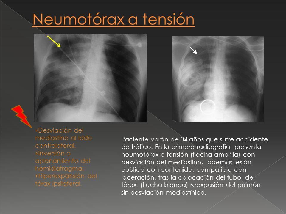 Neumotórax a tensión Desviación del mediastino al lado contralateral.