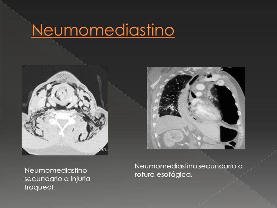 Neumomediastino Neumomediastino secundario a rotura esofágica.