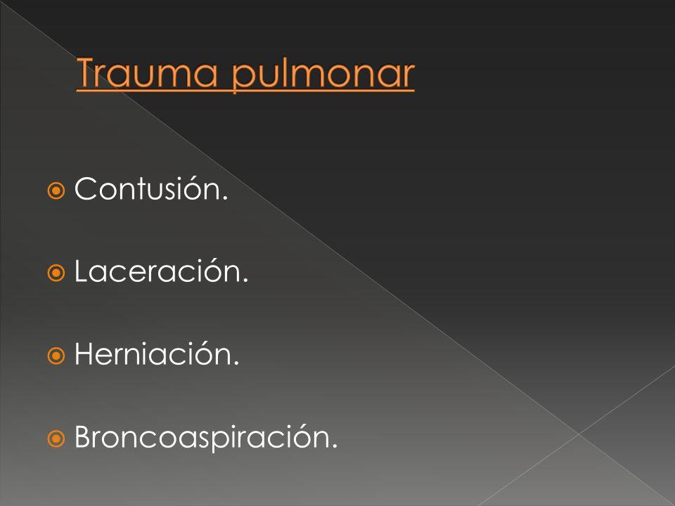 Trauma pulmonar Contusión. Laceración. Herniación. Broncoaspiración.