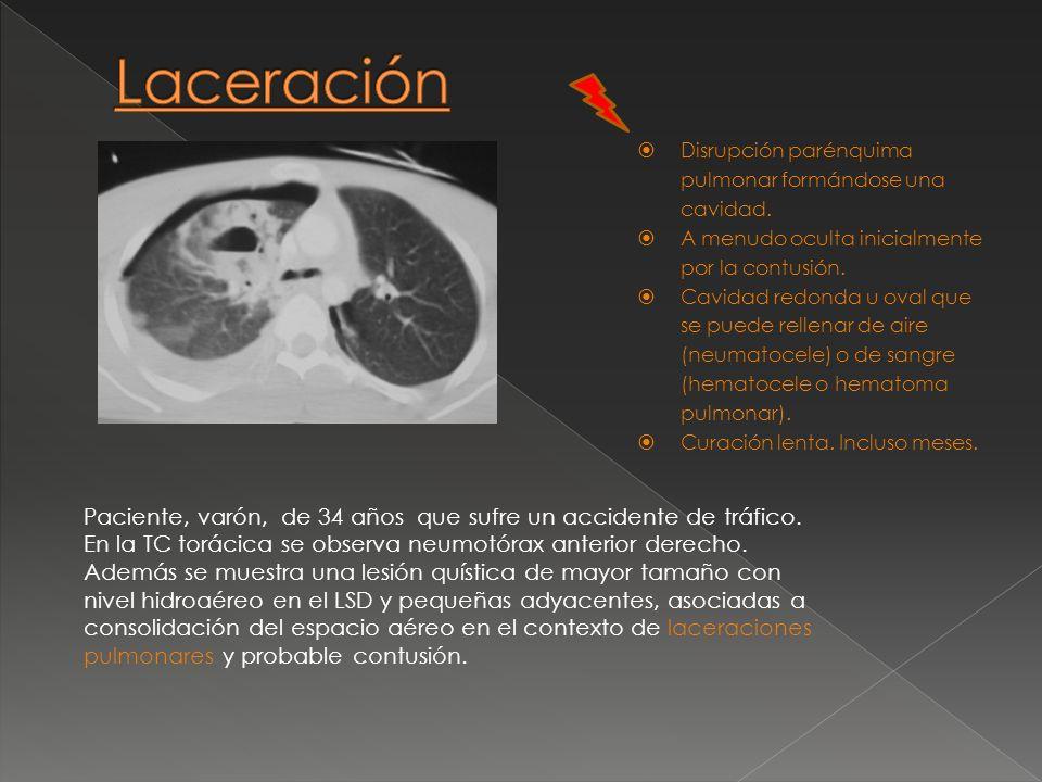 Laceración Disrupción parénquima pulmonar formándose una cavidad. A menudo oculta inicialmente por la contusión.