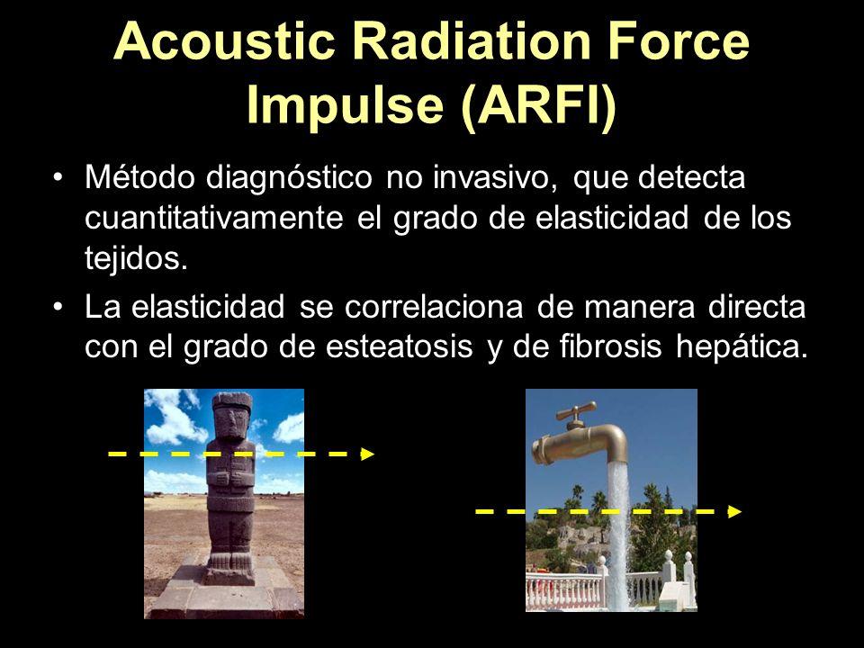 Acoustic Radiation Force Impulse (ARFI)