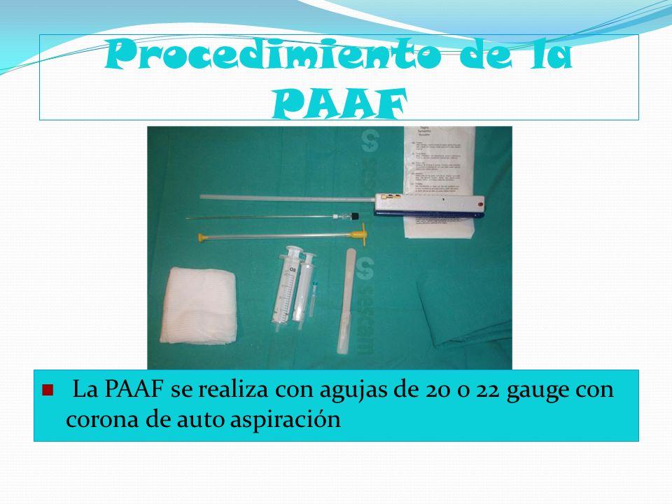 Procedimiento de la PAAF