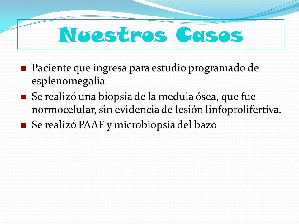 Nuestros CasosPaciente que ingresa para estudio programado de esplenomegalia.