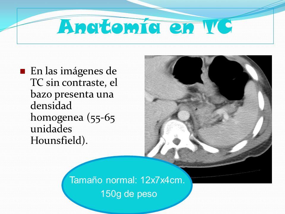 Anatomía en TC En las imágenes de TC sin contraste, el bazo presenta una densidad homogenea (55-65 unidades Hounsfield).