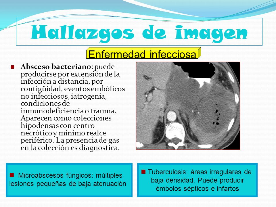 Hallazgos de imagen Enfermedad infecciosa
