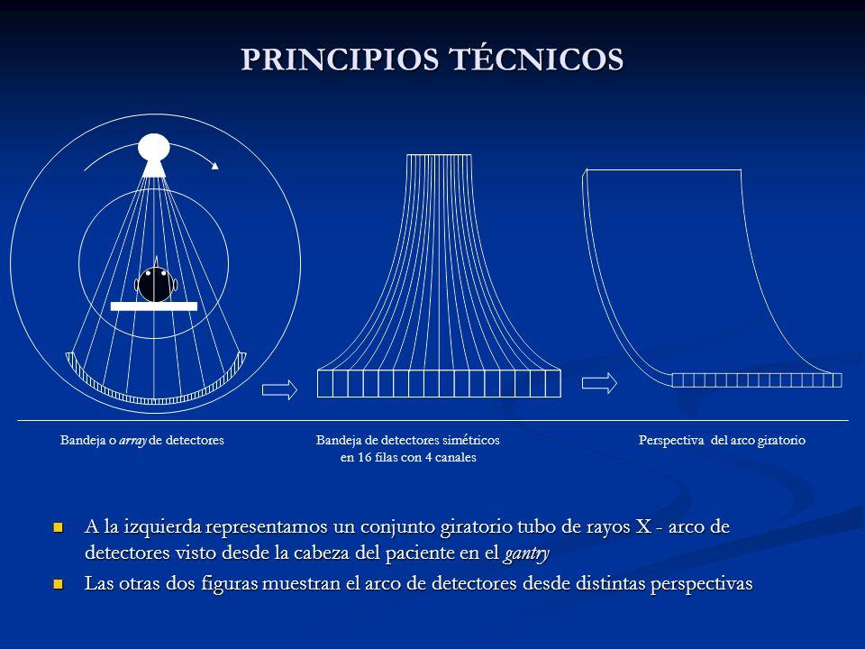 PRINCIPIOS TÉCNICOS Bandeja o array de detectores. Bandeja de detectores simétricos en 16 filas con 4 canales.