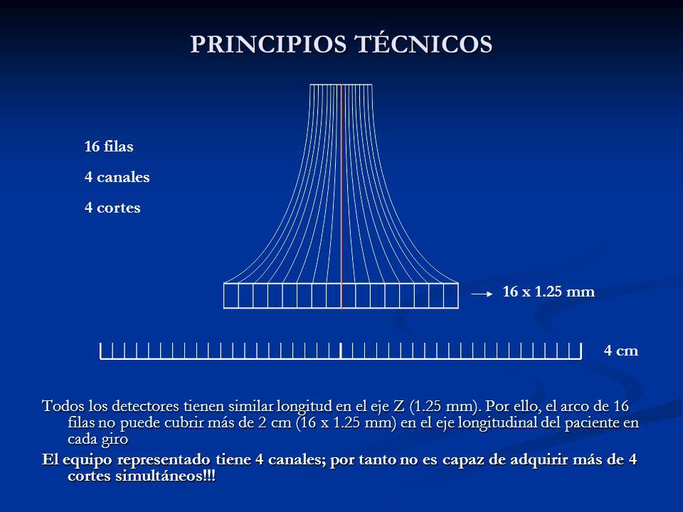 PRINCIPIOS TÉCNICOS 16 filas 4 canales 4 cortes 16 x 1.25 mm 4 cm