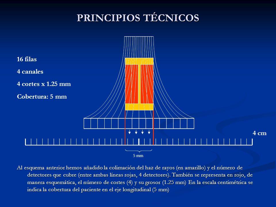PRINCIPIOS TÉCNICOS 16 filas 4 canales 4 cortes x 1.25 mm