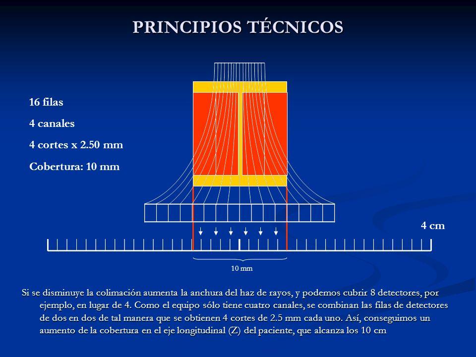 PRINCIPIOS TÉCNICOS 16 filas 4 canales 4 cortes x 2.50 mm