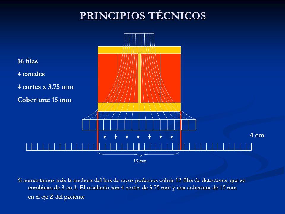 PRINCIPIOS TÉCNICOS 16 filas 4 canales 4 cortes x 3.75 mm