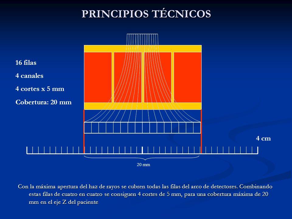 PRINCIPIOS TÉCNICOS 16 filas 4 canales 4 cortes x 5 mm
