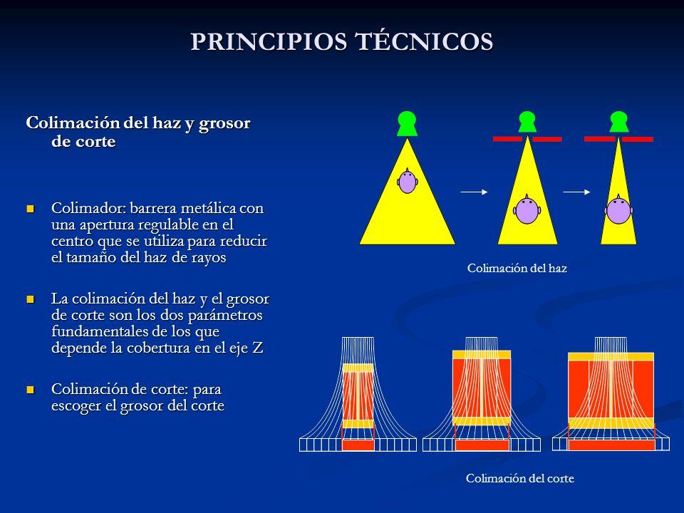 PRINCIPIOS TÉCNICOS Colimación del haz y grosor de corte