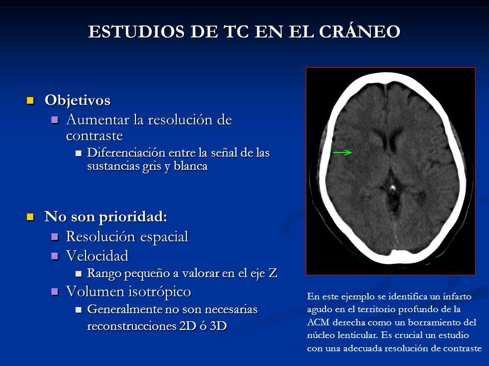 ESTUDIOS DE TC EN EL CRÁNEO