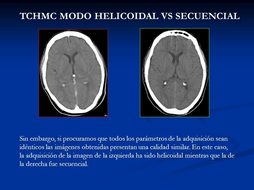 TCHMC MODO HELICOIDAL VS SECUENCIAL