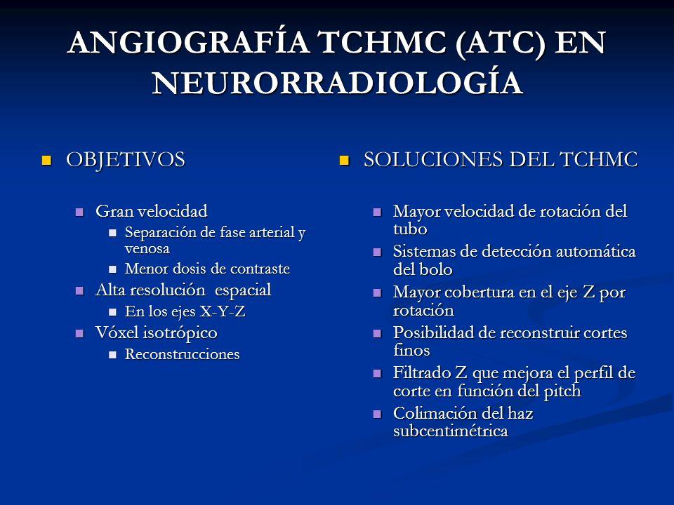 ANGIOGRAFÍA TCHMC (ATC) EN NEURORRADIOLOGÍA
