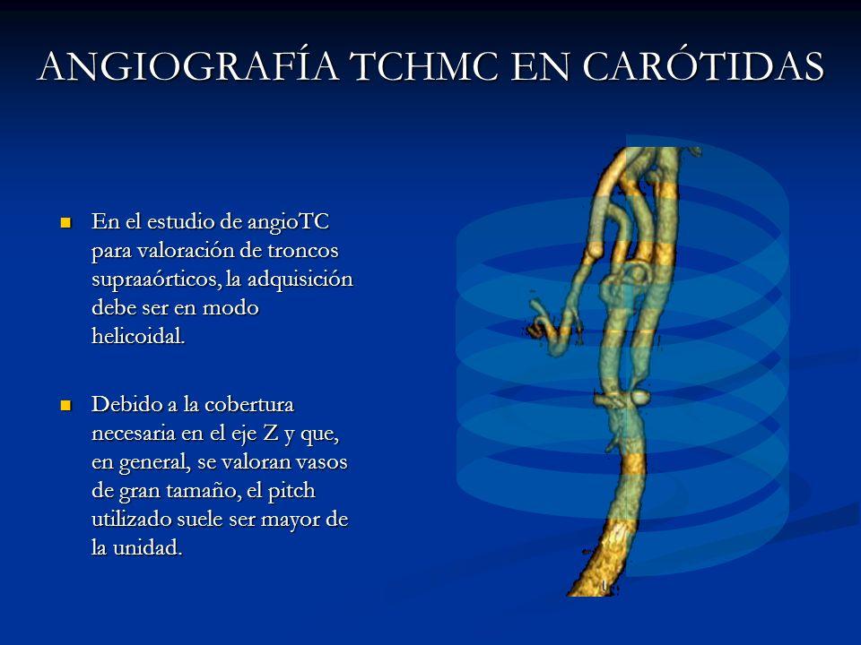 ANGIOGRAFÍA TCHMC EN CARÓTIDAS