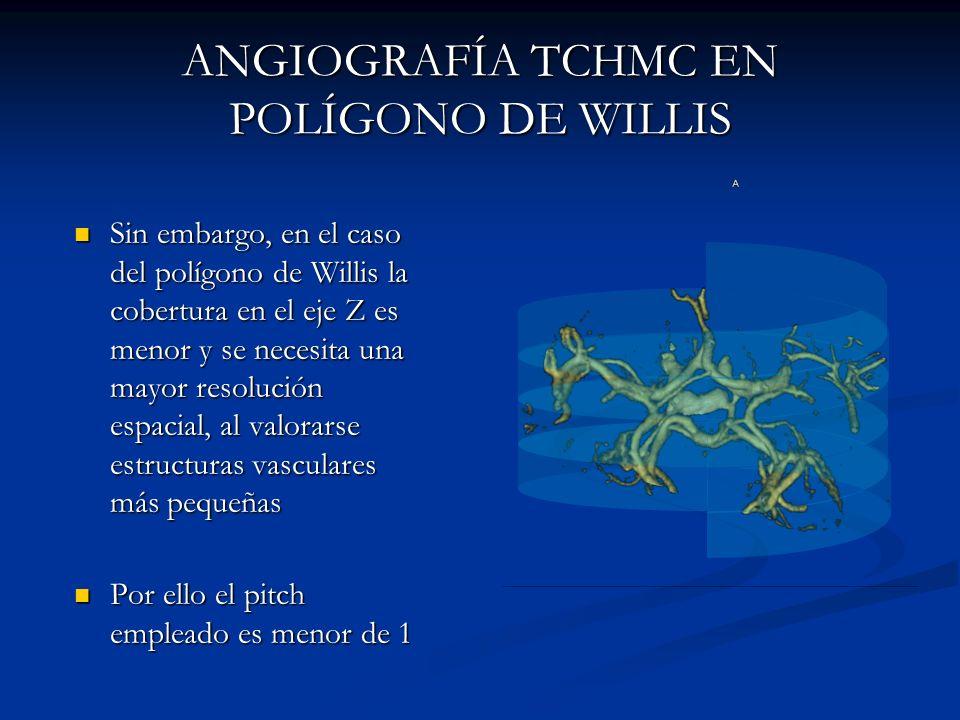 ANGIOGRAFÍA TCHMC EN POLÍGONO DE WILLIS