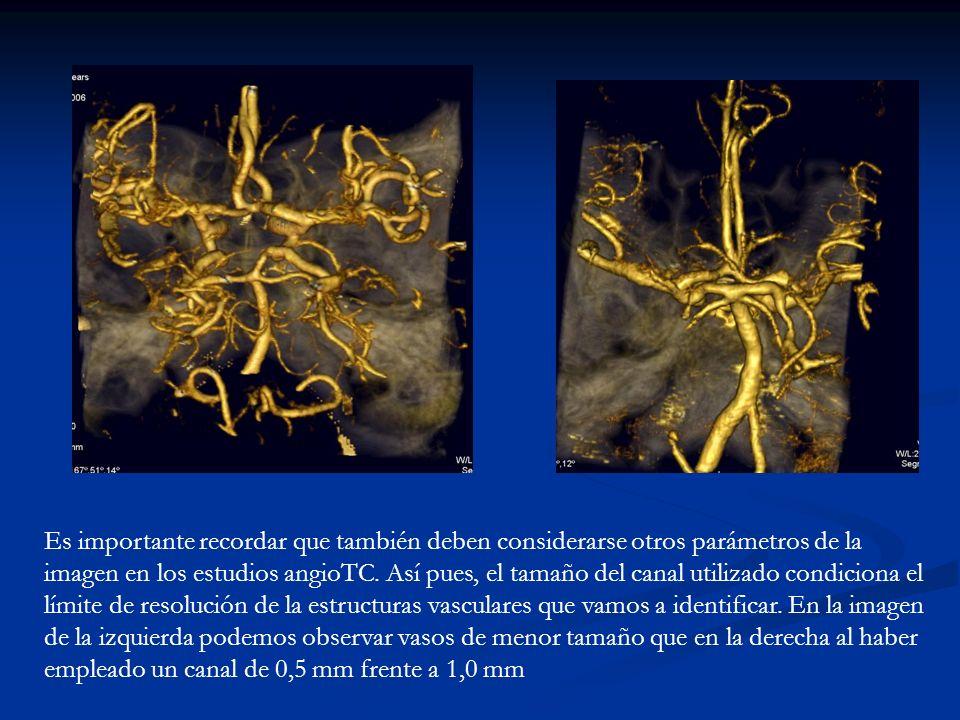 Es importante recordar que también deben considerarse otros parámetros de la imagen en los estudios angioTC.