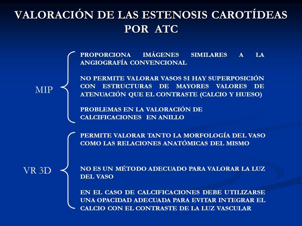 VALORACIÓN DE LAS ESTENOSIS CAROTÍDEAS POR ATC