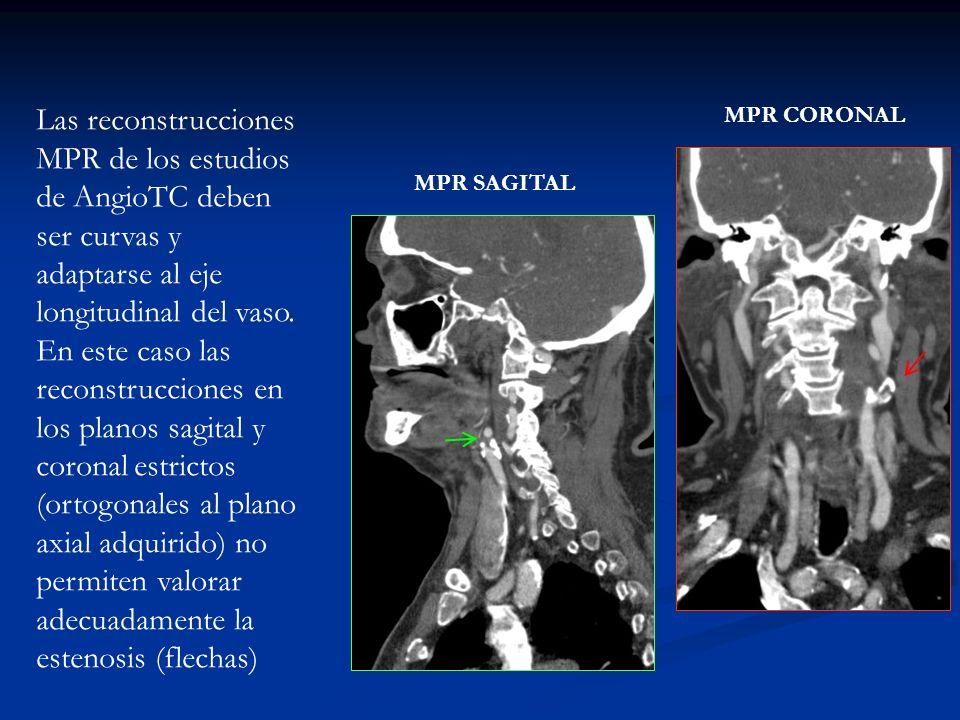 Las reconstrucciones MPR de los estudios de AngioTC deben ser curvas y adaptarse al eje longitudinal del vaso. En este caso las reconstrucciones en los planos sagital y coronal estrictos (ortogonales al plano axial adquirido) no permiten valorar adecuadamente la estenosis (flechas)
