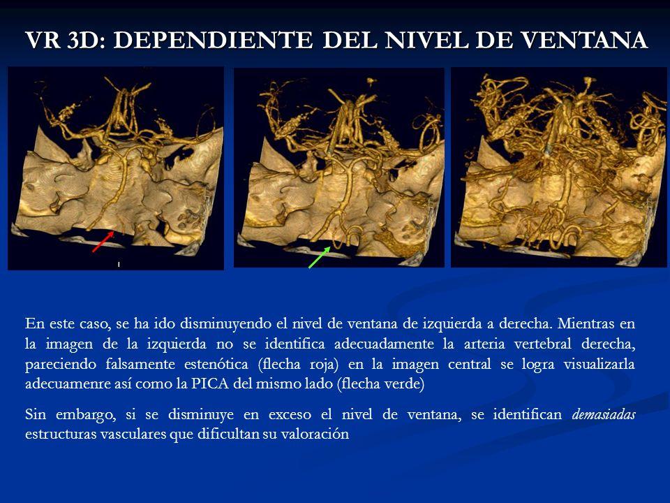 VR 3D: DEPENDIENTE DEL NIVEL DE VENTANA