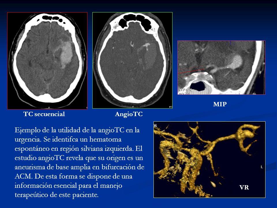 MIP TC secuencial. AngioTC.