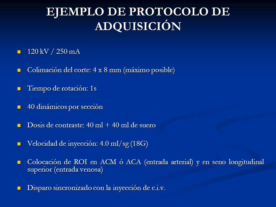 EJEMPLO DE PROTOCOLO DE ADQUISICIÓN