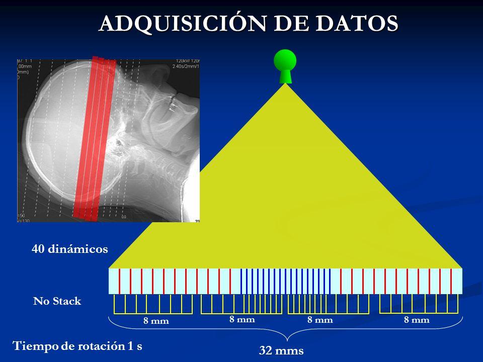 ADQUISICIÓN DE DATOS 40 dinámicos Tiempo de rotación 1 s 32 mms