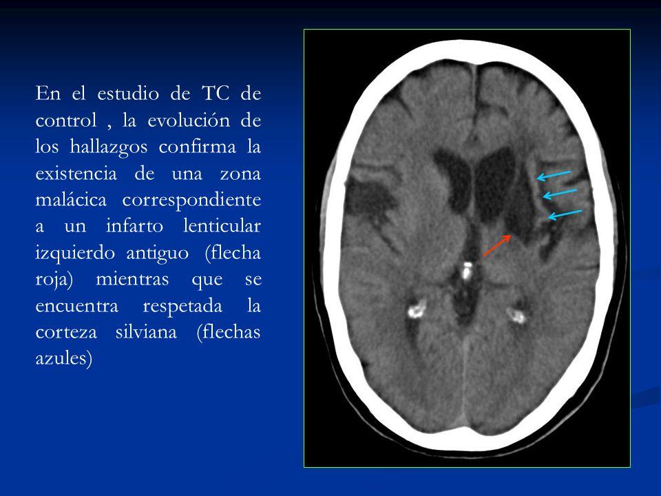 En el estudio de TC de control , la evolución de los hallazgos confirma la existencia de una zona malácica correspondiente a un infarto lenticular izquierdo antiguo (flecha roja) mientras que se encuentra respetada la corteza silviana (flechas azules)