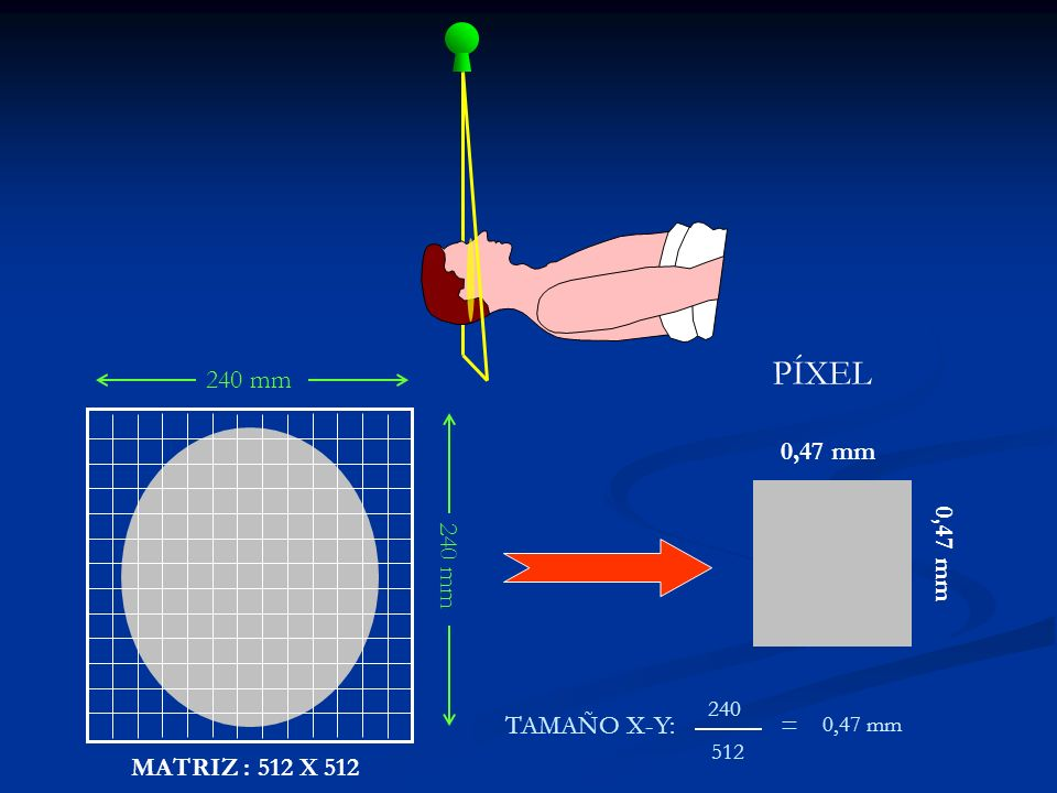 PÍXEL 240 mm 0,47 mm 240 mm 0,47 mm TAMAÑO X-Y: = MATRIZ : 512 X 512