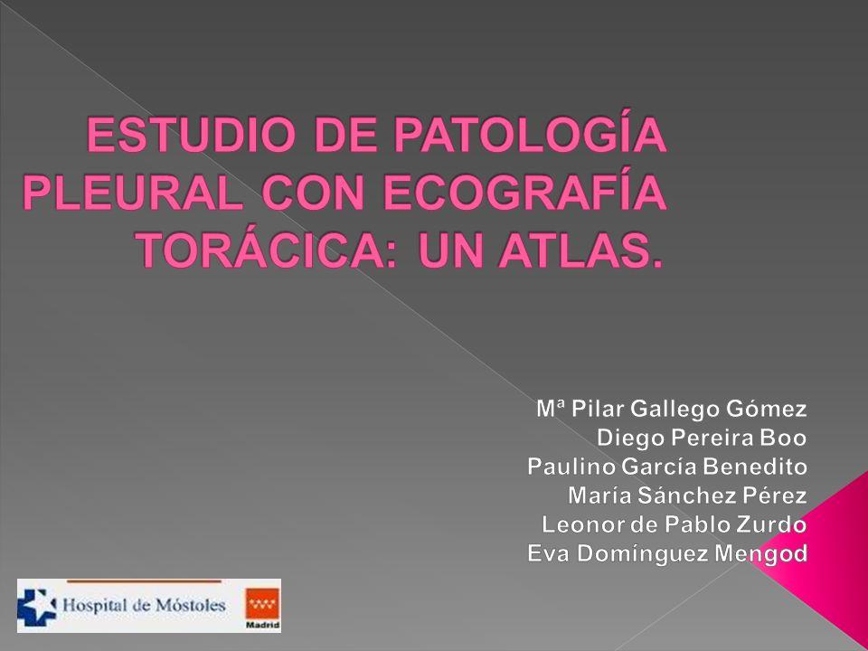 ESTUDIO DE PATOLOGÍA PLEURAL CON ECOGRAFÍA TORÁCICA: UN ATLAS.
