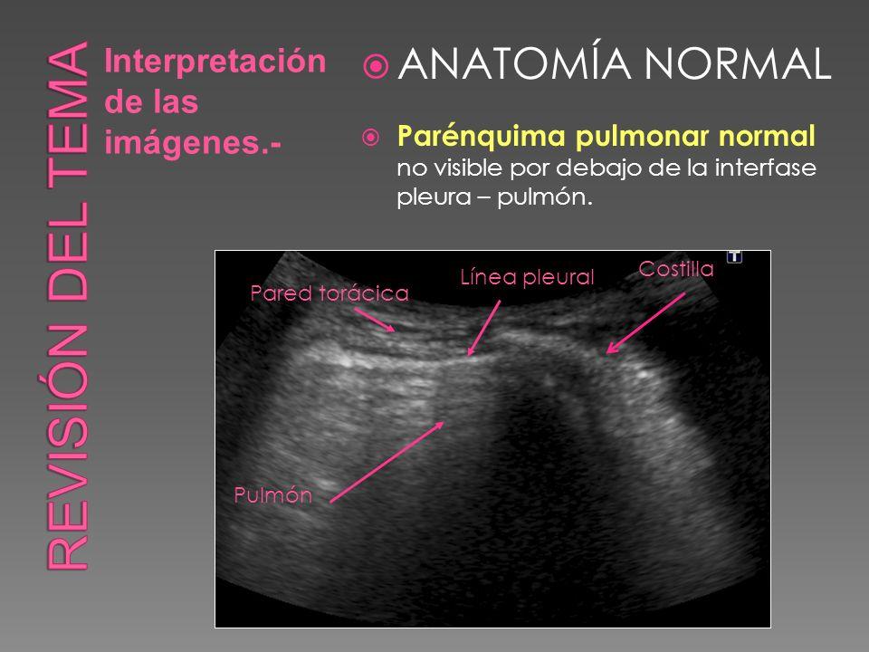 Revisión del tema ANATOMÍA NORMAL Interpretación de las imágenes.-
