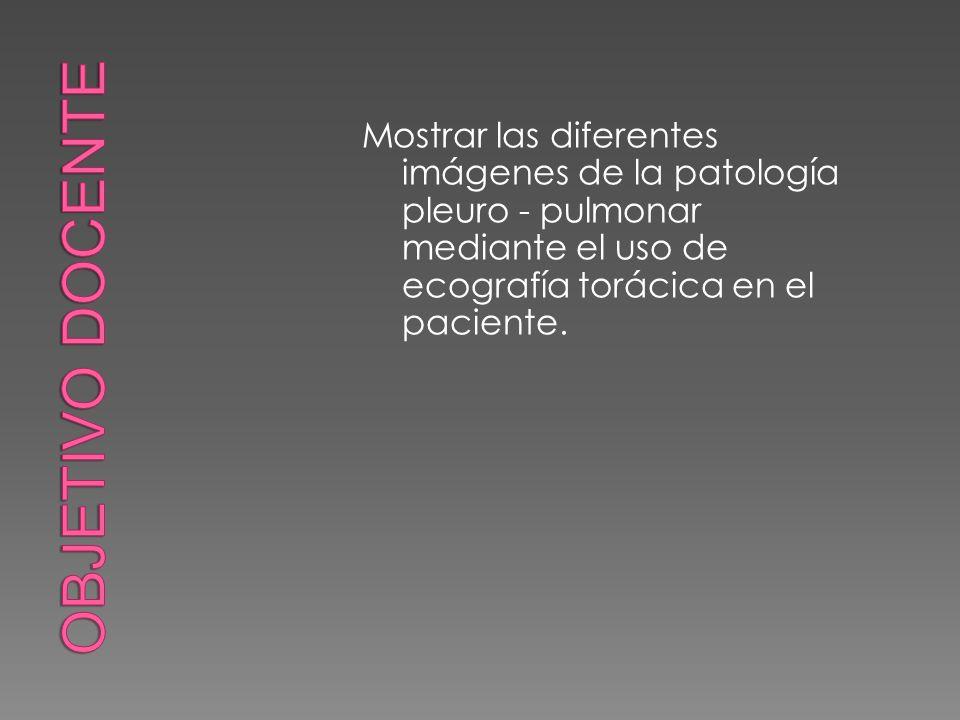 Objetivo docente Mostrar las diferentes imágenes de la patología pleuro - pulmonar mediante el uso de ecografía torácica en el paciente.