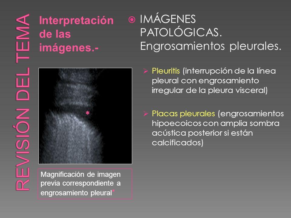 Revisión del tema IMÁGENES PATOLÓGICAS. Engrosamientos pleurales.