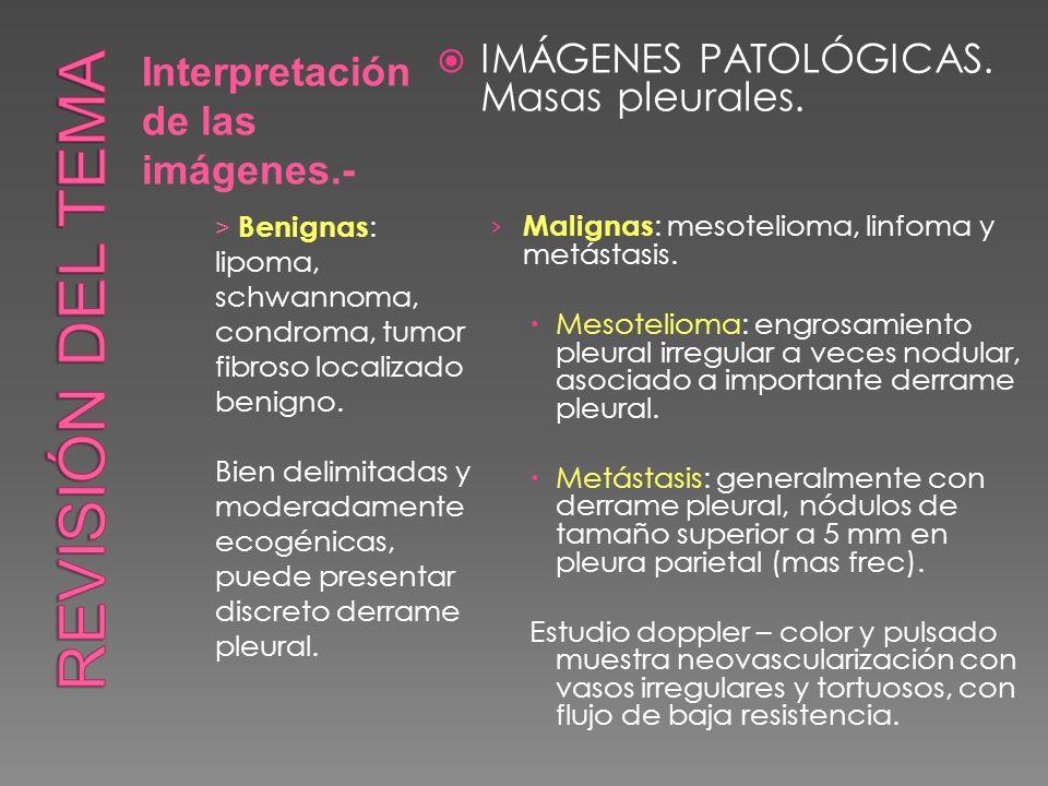 Revisión del tema IMÁGENES PATOLÓGICAS. Masas pleurales.