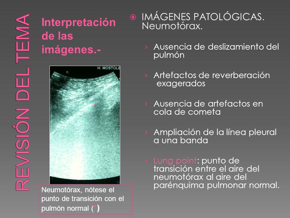 Revisión del tema Interpretación de las imágenes.-