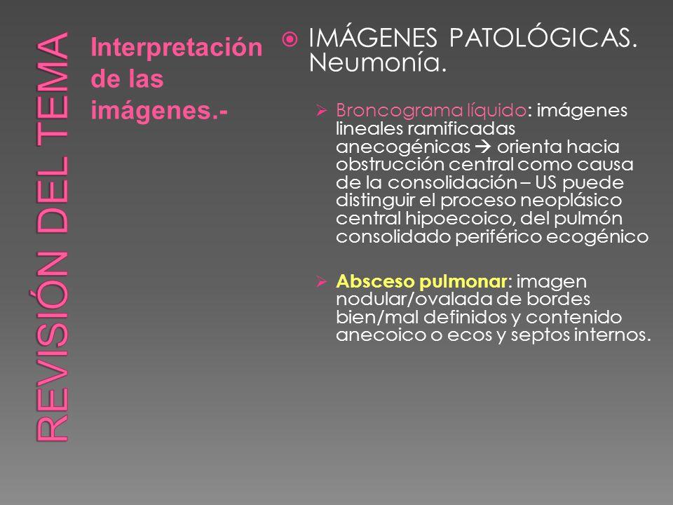 Revisión del tema IMÁGENES PATOLÓGICAS. Neumonía.