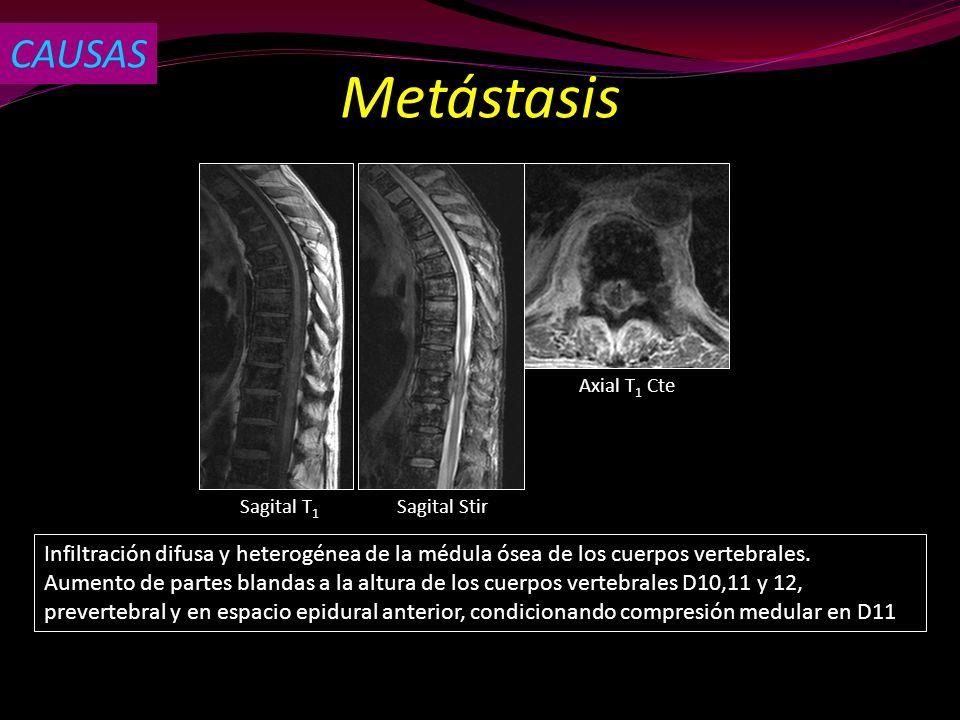 CAUSAS Metástasis. Axial T1 Cte. Sagital T1. Sagital Stir. Infiltración difusa y heterogénea de la médula ósea de los cuerpos vertebrales.