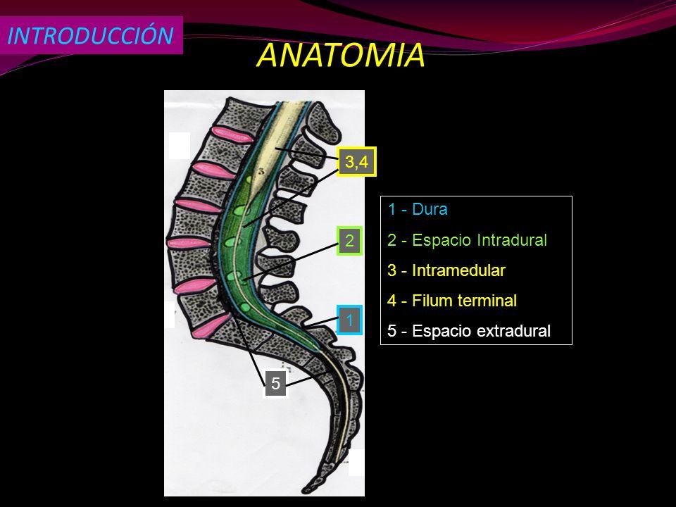ANATOMIA INTRODUCCIÓN 3,4 1 - Dura 2 - Espacio Intradural