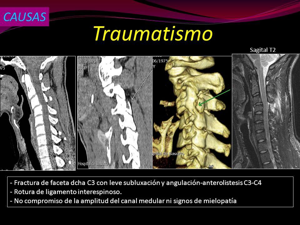 CAUSAS Traumatismo. Sagital T2. - Fractura de faceta dcha C3 con leve subluxación y angulación-anterolistesis C3-C4.